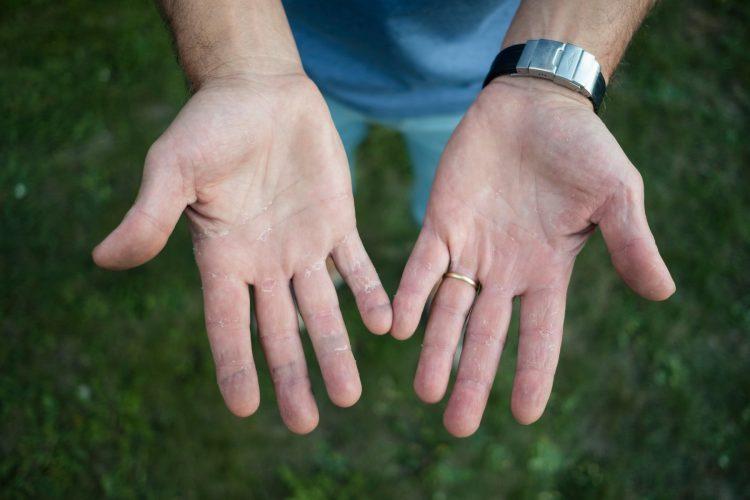Suve ruke