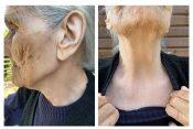 starenje sunce koža