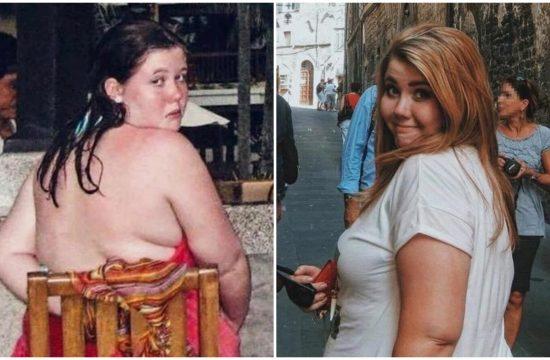 mršavljenje gojaznost