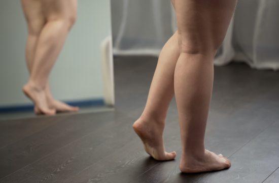 Trik za lakšu dijetu žene koja je smršala 30 kilograma, dijeta, ishranja, trikovi, gojaznost, noge, ogledalo